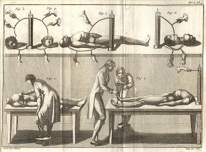 Aldini, 1804