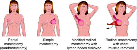 mastectomy-types