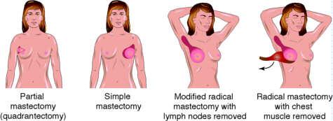 mastectomy-types